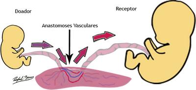 Síndrome da Transfusão Feto-Fetal