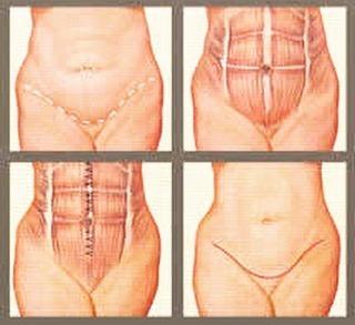 diástase abdominal 05